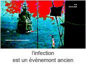 l'infection est un evenemont ancien
